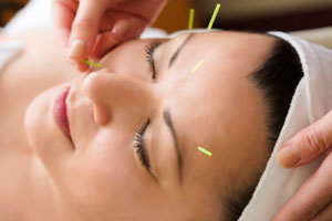 Image result for acupuncture pics